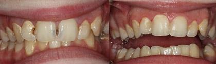 Лечение зубов - Пример работ