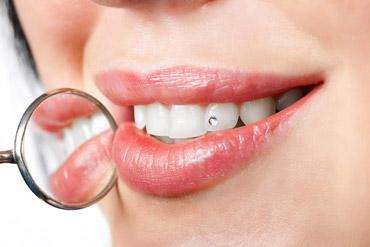 Украшения на зубы