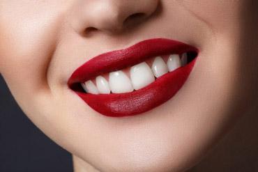 Протезирование зубов коронками